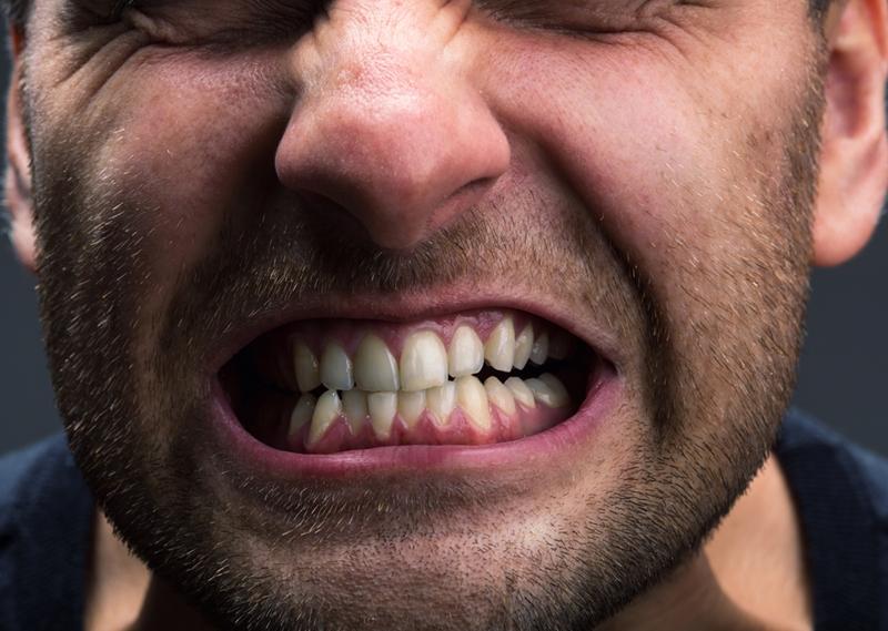 Man grinding teeth.