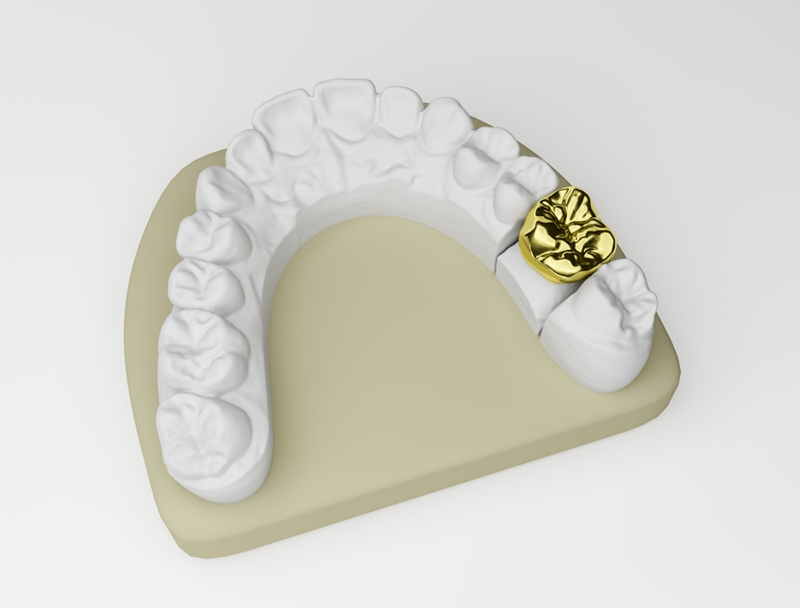 Image of gold crown on false teeth.
