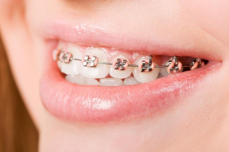 Person wearing braces.