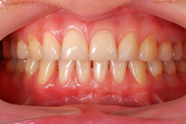 Are-your-gums-wearing-away.jpg