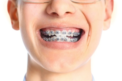 Learn-how-you-can-cope-with-braces.jpg