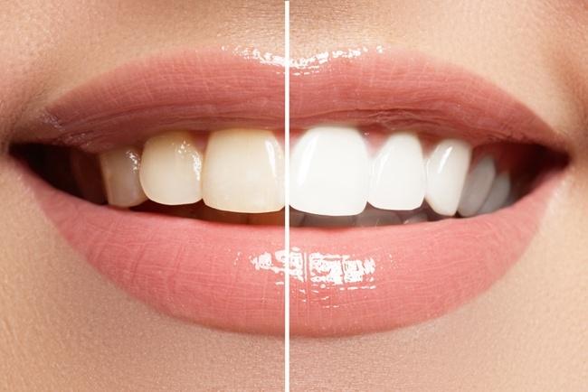 Should-you-whiten-your-teeth.jpg