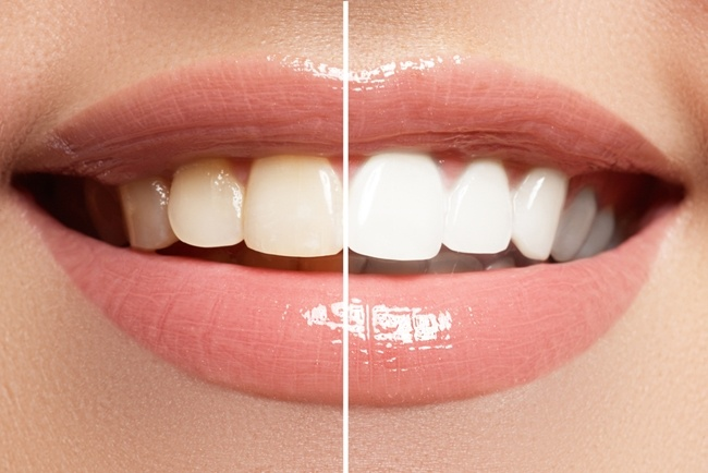 Should-you-whiten-your-teeth.jpg