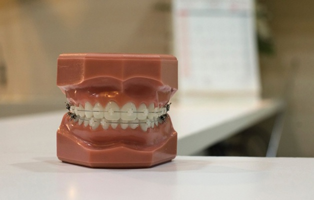 How to Prepare Physically and Financially for Adult Braces