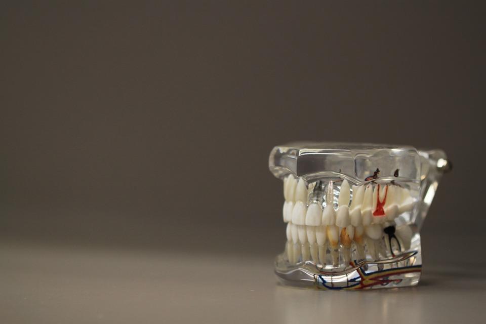 dental-dentures_.jpg