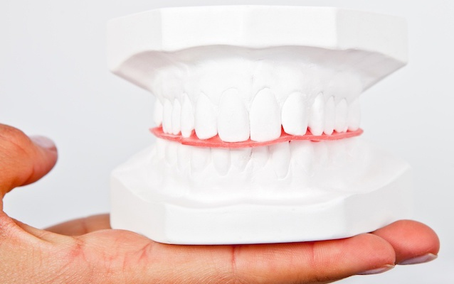 hand-holding-plaster-teeth-sample.jpeg