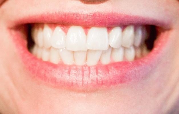 teeth-mouth-smile.jpg