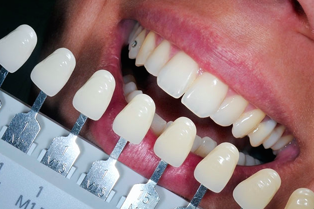 teeth_white.png