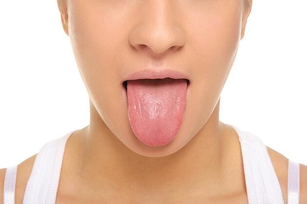 Think Twice About Your Oral Health Before Getting That Tongue Piercing