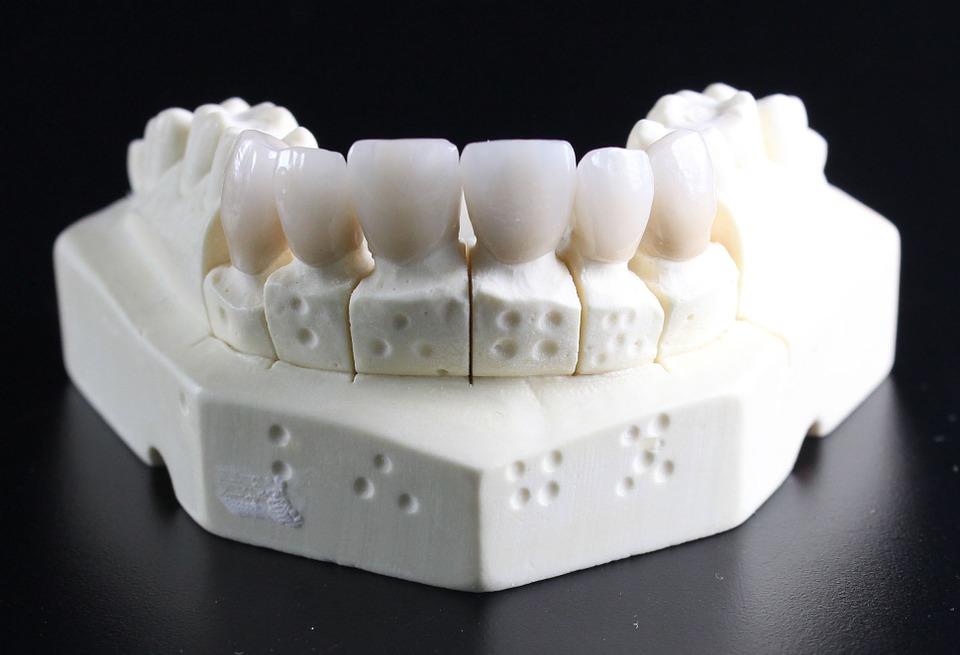 Dental Solutions Don't Let Dental Costs Sky Rocket